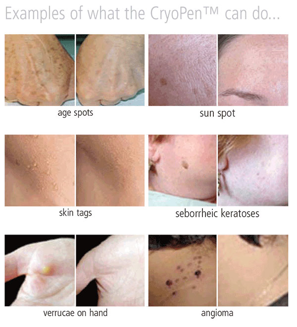 What CryoPen can do for you with SKiN Private Aesthetic Clinic
